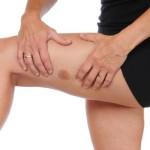 Как быстро убрать синяк на ноге
